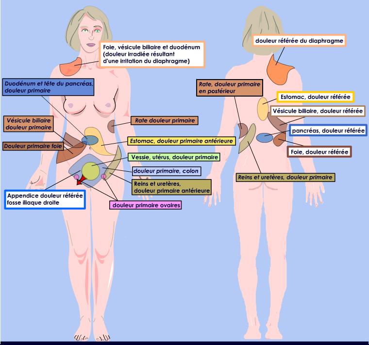 La hernie intervertébrale du service de poitrine de lépine dorsale de la raison