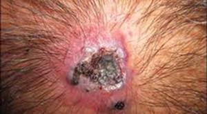 Le régime à atopitcheskom la dermatite peut