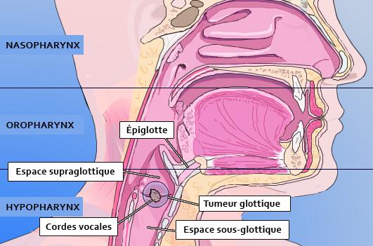 imagerie cancer orl palli science site officiel de formation en soins palliatifs et