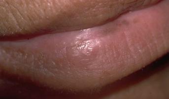Imagerie – Cancer ORL | Palli-Science : site officiel de ...